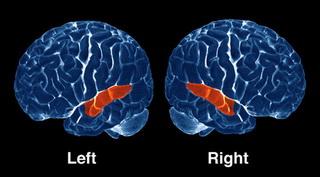 Расположение долей мозга, ответственных за слух
