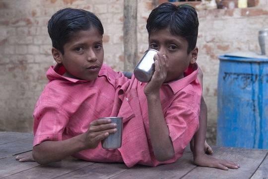 Индия-Сиамские-близнецы
