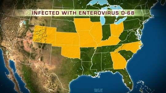 Enterovirus-D68