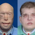 Firefighter Burned in Line of Duty Receives 'Most Extensive' Face Transplant Ever