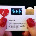 Такие визитки со встроенным ЭКГ должны быть у каждого кардиолога