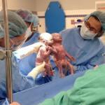 Трогательная история близнецов, которые родились, держась за руки