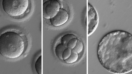 Scientists have, for the first time, successfully freed embryos of a piece of faulty DNA that causes deadly heart disease to run in families.