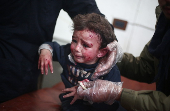 TOPSHOTS A wounded Syrian child receives